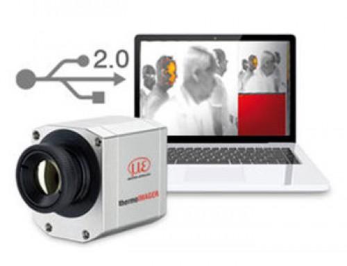 Beskontaktno mjerenje tjelesne temperature pomoću termovizijske kamere